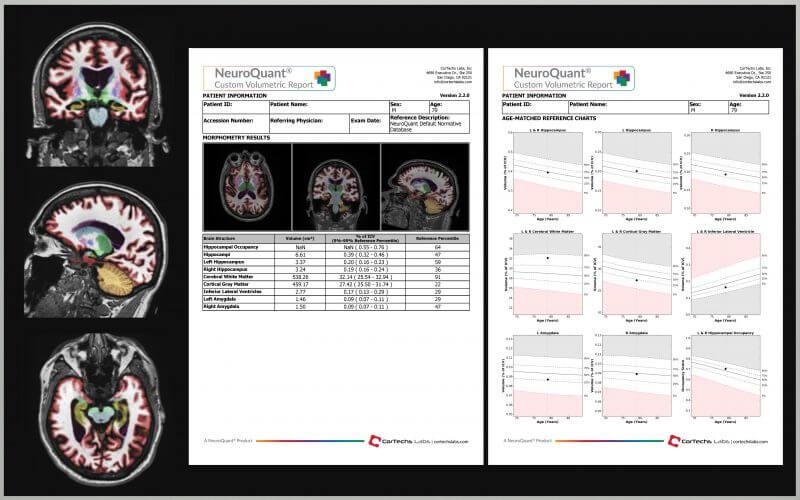 NeuroQuant (R) Report Sample